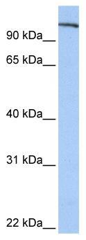 Western blot - FES antibody (ab81441)
