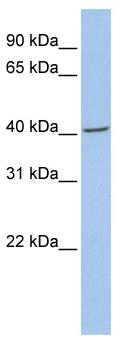 Western blot - Fibromodulin antibody (ab81443)