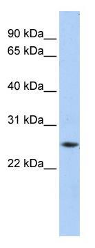 Western blot - Ferritin Heavy Chain antibody (ab81444)