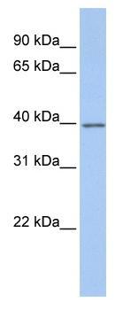 Western blot - G protein alpha Inhibitor 2 antibody (ab81446)