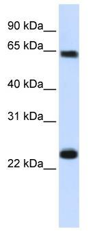 Western blot - SRP1 antibody (ab81448)