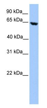Western blot - ACADVL antibody (ab81497)
