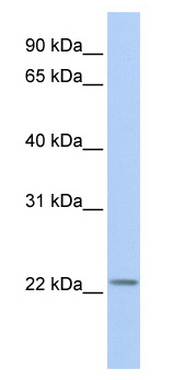 Western blot - Anti-Histone H1t antibody (ab81498)