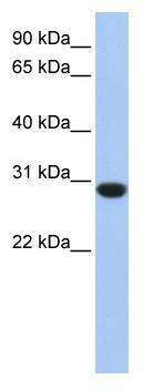 Western blot - ASB12 antibody (ab81509)