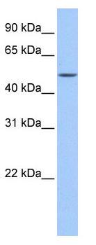 Western blot - FAAH2 antibody (ab81510)