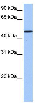 Western blot - SAMD14 antibody (ab81511)