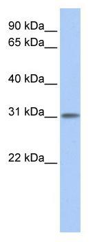 Western blot - ODF3L1 antibody (ab81513)