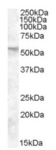 Western blot - FKBP52 antibody (ab81527)