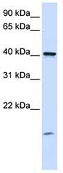 Western blot - TMEM79 antibody (ab81539)