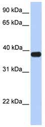 Western blot - ASB5 antibody (ab81540)