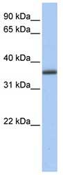 Western blot - GALE antibody (ab81541)