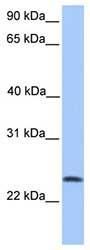 Western blot - TCTEX1D4 antibody (ab81542)