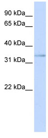 Western blot - ETV3L antibody (ab81641)