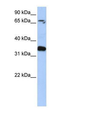 Western blot - GLE1 antibody (ab81648)