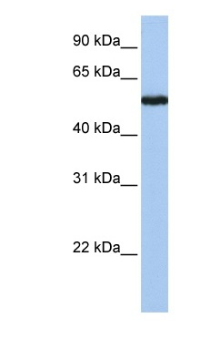 Western blot - SLC38A9 antibody (ab81687)