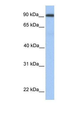 Western blot - Neprilysin-like Protease beta antibody (ab81688)