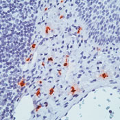 Immunohistochemistry (Formalin/PFA-fixed paraffin-embedded sections) - Mast Cell Tryptase antibody [AA1] - BSA and Azide free (ab81703)