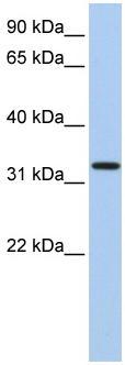 Western blot - C12orf24 antibody (ab81771)