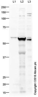 Western blot - PNPLA3 antibody (ab81874)