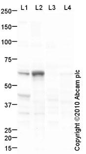 Western blot - SLC27A1  antibody (ab81875)