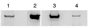 Western blot - Anti-PYGM antibody (ab81901)