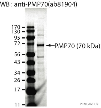 Western blot - PMP70 antibody (ab81904)