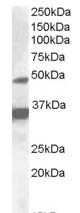 Western blot - PXR antibody (ab81970)