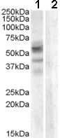 Western blot - Arylsulfatase D antibody (ab81978)
