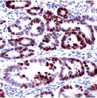 Immunohistochemistry (Formalin/PFA-fixed paraffin-embedded sections) - MSH6 antibody [SPM525] (ab82077)