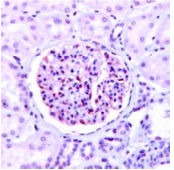 Immunohistochemistry (Formalin/PFA-fixed paraffin-embedded sections) - NPHS2 antibody, prediluted (ab82107)