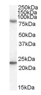 Western blot - DHX58 antibody (ab82151)