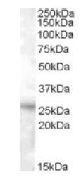 Western blot - RASSF3 antibody (ab82168)