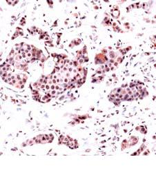 Immunohistochemistry (Formalin/PFA-fixed paraffin-embedded sections) - Dihydrofolate reductase (DHFR) antibody (ab82171)