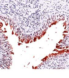 Immunohistochemistry (Formalin/PFA-fixed paraffin-embedded sections) - Uroplakin III antibody, prediluted (ab82172)