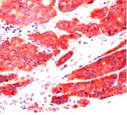 Immunohistochemistry (Formalin/PFA-fixed paraffin-embedded sections) - TNS4 antibody, prediluted (ab82177)