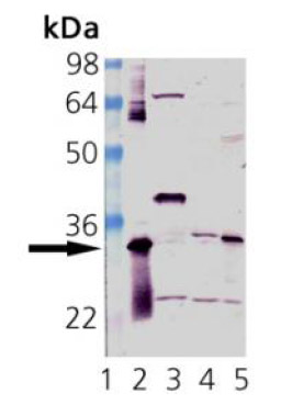 Western blot - Heme Oxygenase 1 antibody (ab82219)