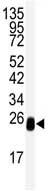 Western blot - DCXR antibody (ab82303)
