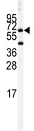 Western blot - Butyrylcholinesterase antibody (ab82307)
