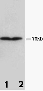 Western blot - Collagen III antibody [Col-29] (ab82354)