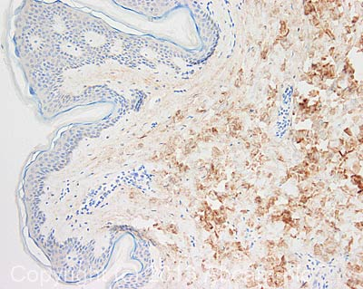 Immunohistochemistry (Formalin/PFA-fixed paraffin-embedded sections) - Anti-Collagen III antibody [Col-29] (ab82354)