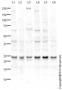 Western blot - RRAS antibody (ab82356)