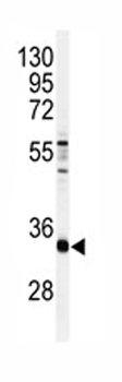 Western blot - CRSP8 antibody (ab82374)