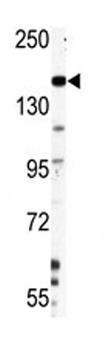 Western blot - Nestin antibody (ab82375)