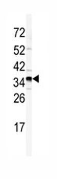 Western blot - GOLPH3 antibody - N-terminal (ab82377)