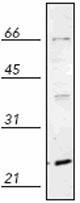 Western blot - Rab5 antibody (ab82452)