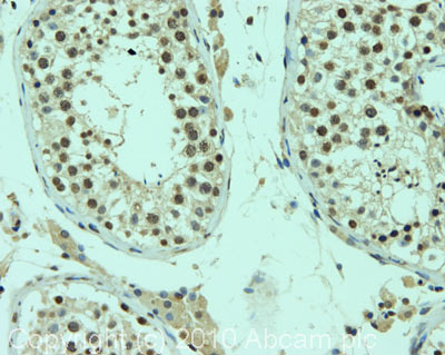 Immunohistochemistry (Formalin/PFA-fixed paraffin-embedded sections) - AIRE antibody (ab82493)