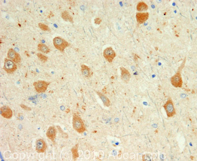 Immunohistochemistry (Formalin/PFA-fixed paraffin-embedded sections) - Dynorphin A antibody (ab82509)
