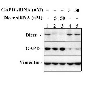 Western blot - Dicer antibody [4A6] (ab82539)
