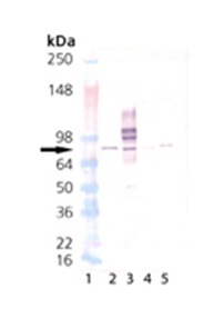 Western blot - Anti-PKC alpha antibody [MC5] (ab82540)