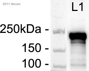 Western blot - Anti-smooth muscle Myosin heavy chain 11 antibody (ab82541)